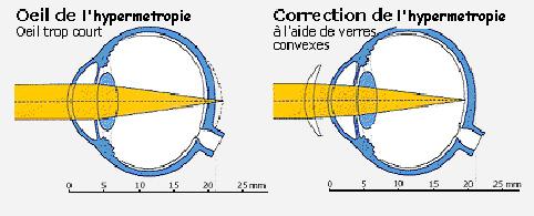 La correction de l hypermétropie peut se faire par des lunettes dont le  verre convexe repositionne l image sur la rétine. 62375fe6c561