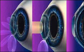 oeil implant torique